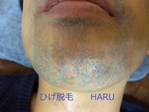HARUP1000644