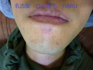 HARUP1000560