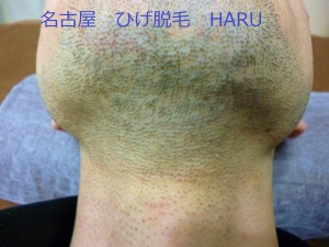 HARUP1010669