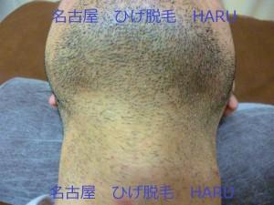 HARUP1010677