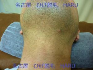 HARUP1010810