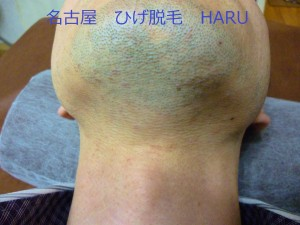 HARUP1010952