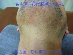 HARUP1010967