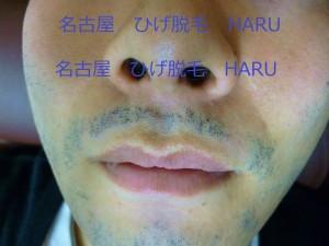 HARUP1010997