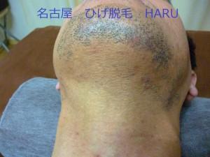 HARUP1030061