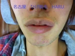 HARUP1000572