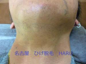 HARUP1010551