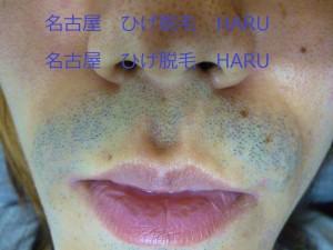 HARUP1010783