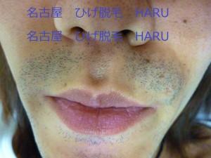 HARUP1010878