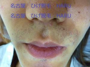 HARUP1030257