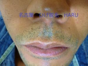 HARUP1010319