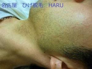 HARUP1030268