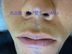 HARUP1030502