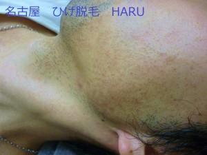 HARUP1030739
