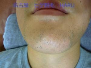 HARUP1030937