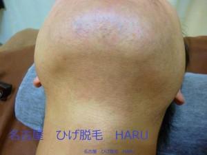 HARU1P1030516
