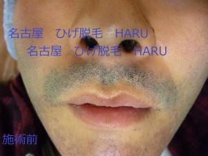 HARUP1010091