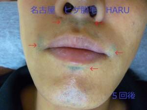 HARUP1060052