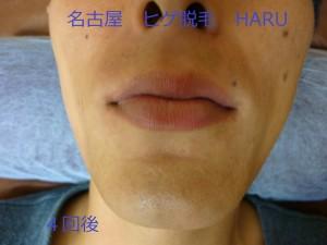 HARUP1060169