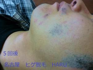 HARUP1060186