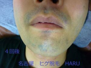 HARuP1030766