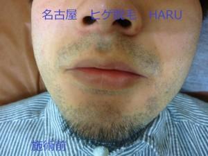HARUP1060130