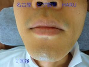 HARUP1060501