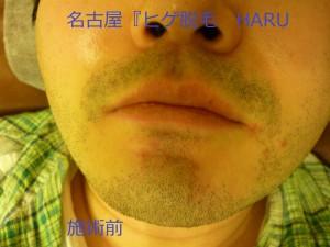 HARUP1060304