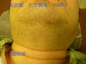 HARUP1060306