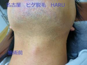 HARUP1060400