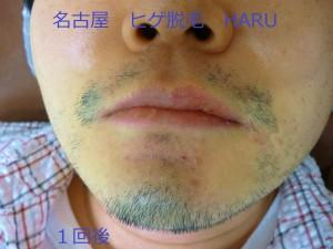 HARUP1060456