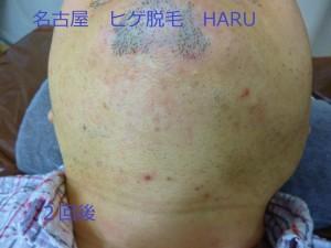 HARUP1060610