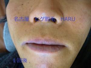 HARUP1060757