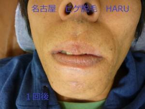 HARUP1060798