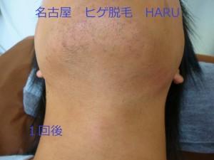 HARUP1060880