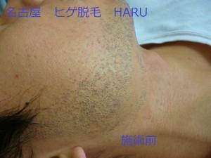 HARUP1060478