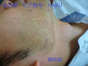 HARUP1060755