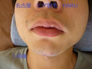 HARUP1060953