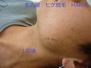 HARUP1060955
