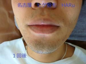 HARUP1060984