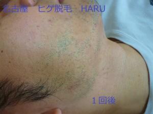 HARUP1060988