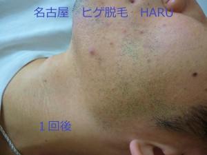 HARuP1060987
