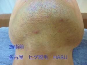 HARUP1000229