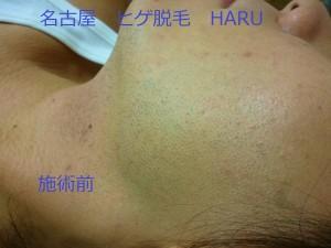 HARUP1060588