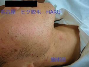HARUP1070004