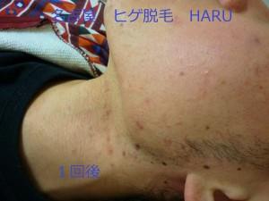 HARUP1070212