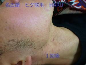 HARUP1070213