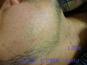 HARUP1070231