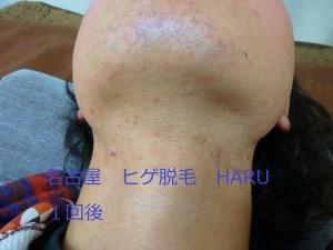 HARuP1070211