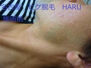 HARUP1060915